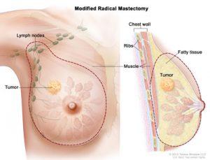 ModRadicalMastectomy4