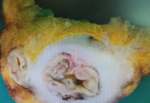 IMG 2793 e1486473456424 640x440 - Diverticulitis of the COLON