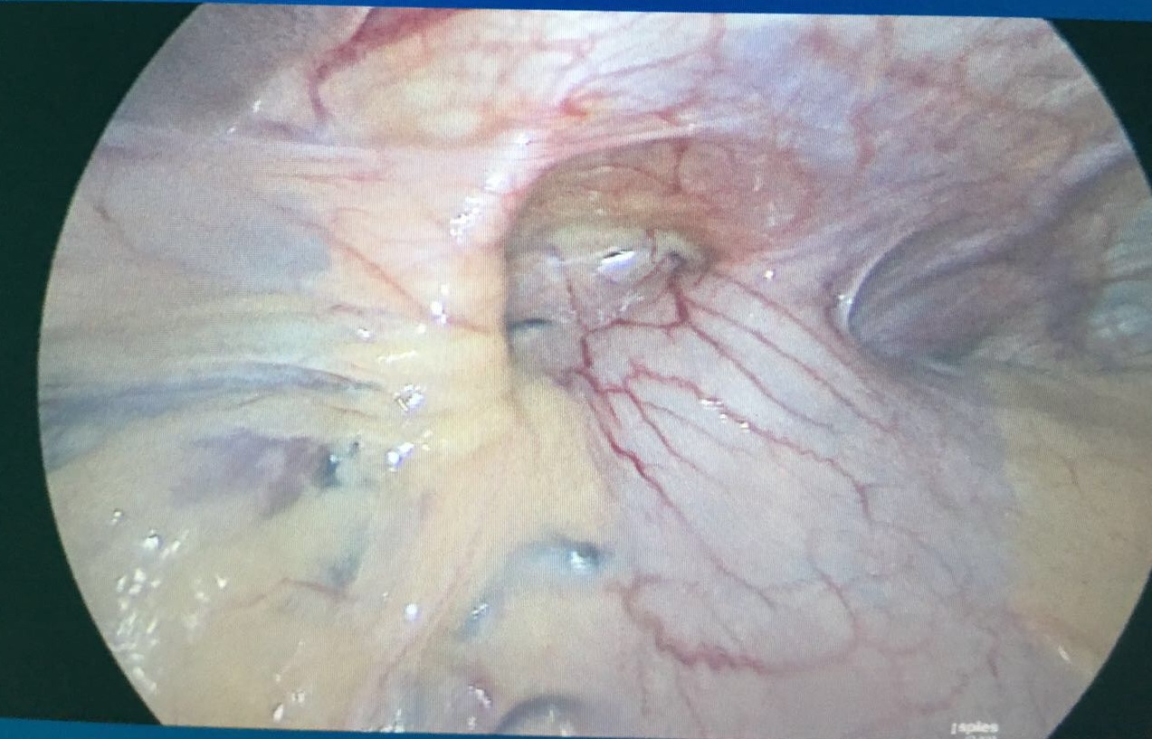 repair of the hiatal hernia