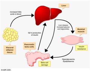 fatty-liver-diabetes