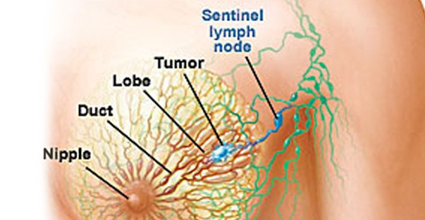 sentinel lymph node